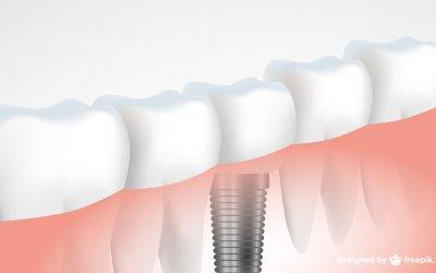Zahnimplantate – Wichtige Fakten zusammengefasst