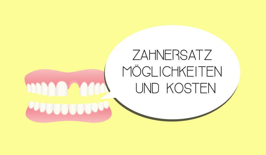 Zahnersatz – Möglichkeiten und Kosten