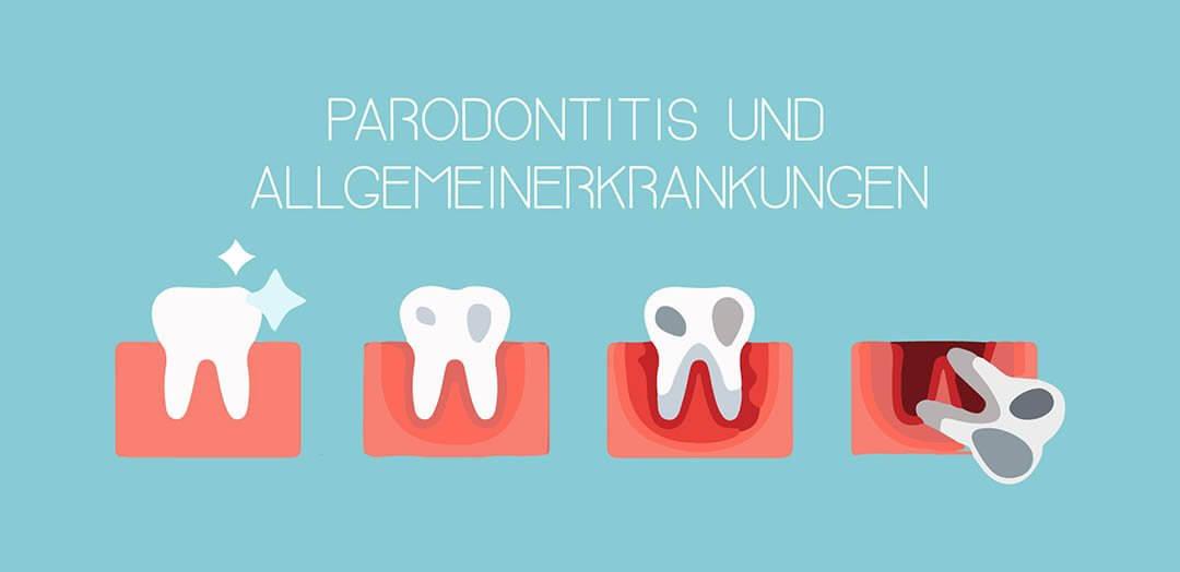 Parodontitis und Allgemeinerkrankungen